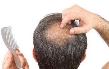 男人右边是肝还是胃-男性脱发是什么原因 治疗脱发的妙招图片