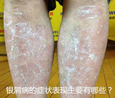各种皮肤病�y�i�f_39皮肤病_39健康网