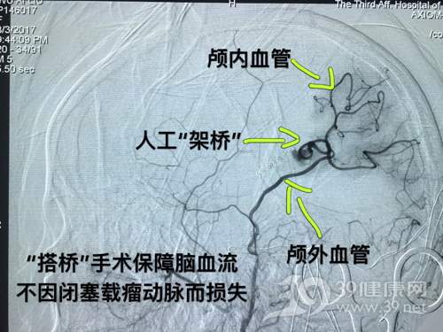 动脉夹层动脉瘤3