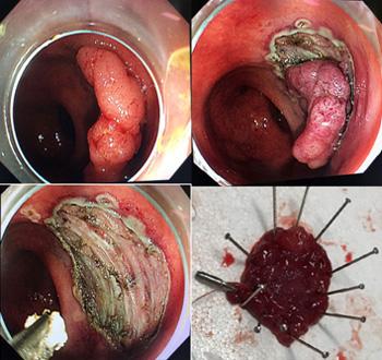 结肠癌-更微创更精准 广东省内首例使用Clutch Cutter电剪刀进行内镜黏