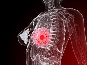 乳腺增生的原因 乳腺增生怎样治疗?