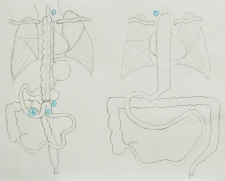 王禹冰副主任医师手绘手术设计简易图