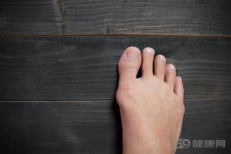 脚趾囊肿其实是脚部结构存在缺陷所致,由遗传因素决定.