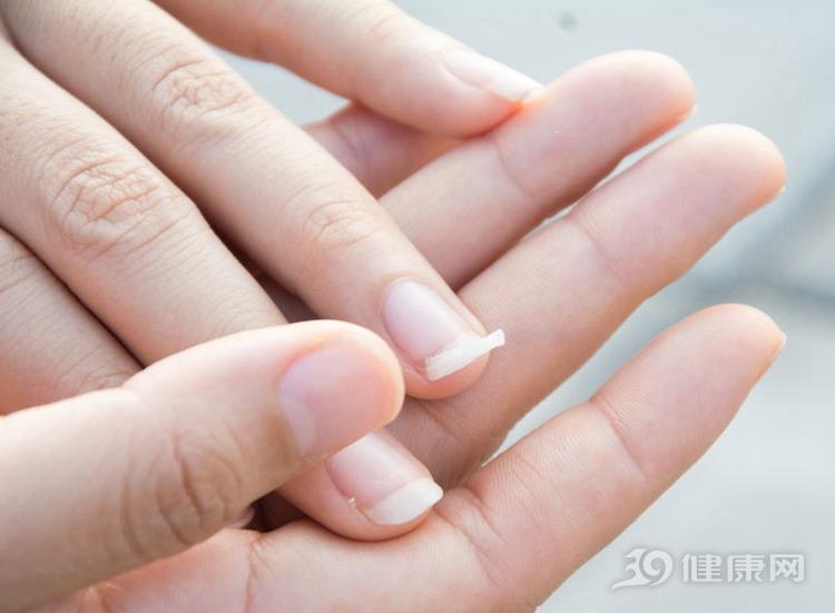生活中难免会磕磕碰碰,外伤导致指甲出现明显的受损,产生竖纹的形状.