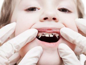孩子掉的乳牙需要扔掉吗?