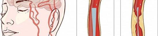 矫正腿部弯曲关节 改变腿型塑美腿