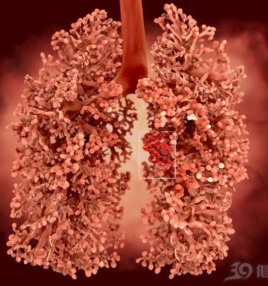 肺癌到底怎么分类?什么是分型?什么是分期?