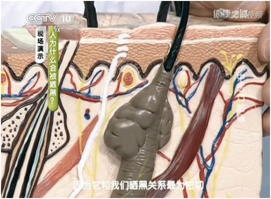 """皮肤解剖结构——寻找皮肤变黑的元凶""""色素细胞"""""""