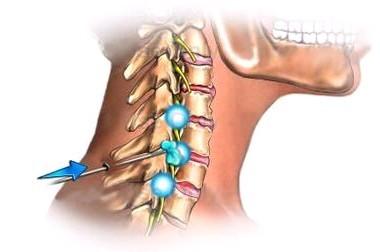 颈椎病最严重的症状_颈椎病严重的症状_颈椎病严重的症状图_淘宝助理