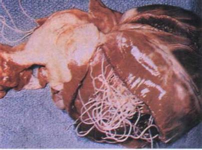 乳腺增生症的治疗_化脓性肉芽肿的症状图片,化脓性肉芽肿图片大全_化脓性肉芽肿_39 ...