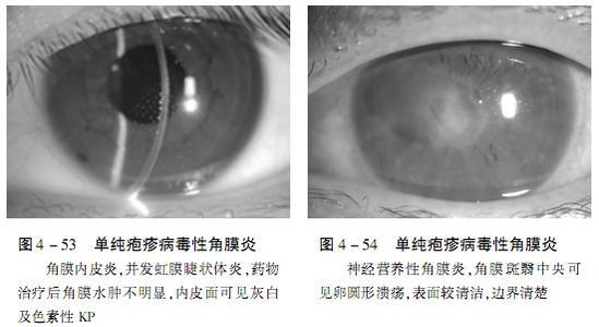 支原体感染的症状_单纯疱疹的症状图片,单纯疱疹图片大全_单纯疱疹_39疾病百科