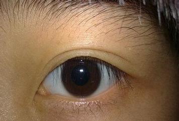 最新资讯_重瞳的症状图片,重瞳图片大全_重瞳_39疾病百科