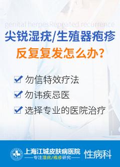 上海尖锐湿疣医院