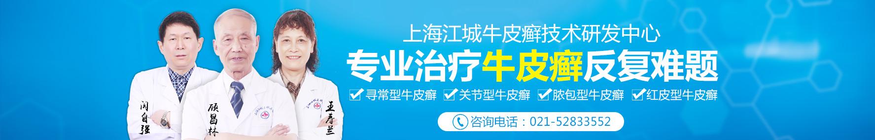 上海牛皮癣医院