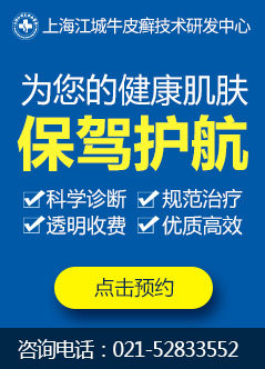 上海治疗牛皮癣医院