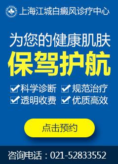 上海治疗白癜风医院