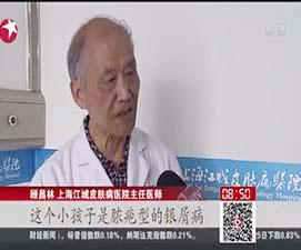 上海最好的白癜风医院