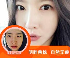 北京薇琳医疗美容医院美丽相册