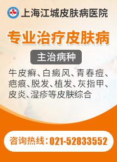 上海皮肤病医院哪家好