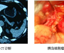 c胰岛功能性β细胞瘤