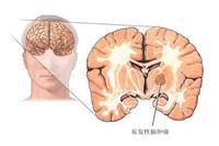 中枢神经系统结核瘤