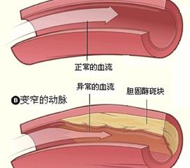 主动脉硬化