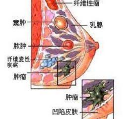 乳腺错构瘤