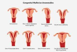 小儿先天性卵巢发育不全