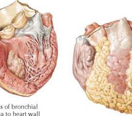 心脏转移瘤