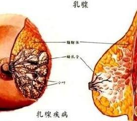 慢性乳腺炎