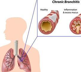 慢性支气管炎