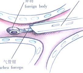 气管支气管异物