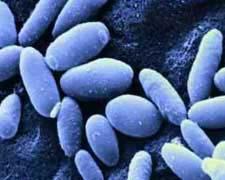 生殖器念珠菌病