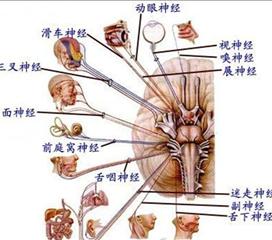 眼肌麻痹性偏头痛