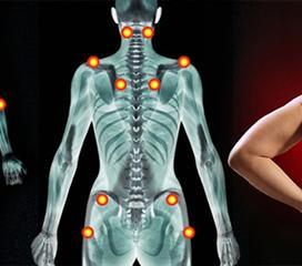 纤维肌痛综合征