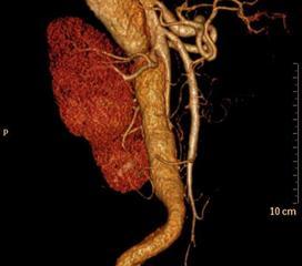 老年人主动脉夹层分离