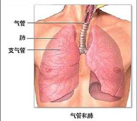 老年人支气管扩张
