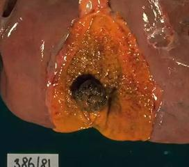 肝内胆管结石