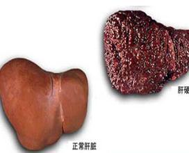 肝性脊髓病