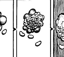 肠系膜淋巴结结核