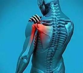 肩关节结核
