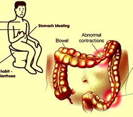 胆囊-结肠肝曲粘连综合征