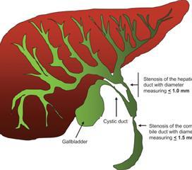 胆管炎性狭窄