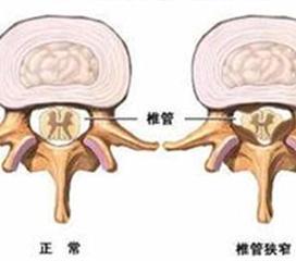 胸椎管狭窄