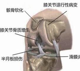 膝关节退行性病变