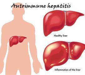 自身免疫性肝病