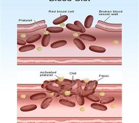 血小板减少症