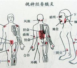 遗传性痉挛性截瘫