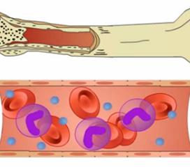 骨髓异常增生综合征