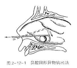 鼻腔及鼻窦异物